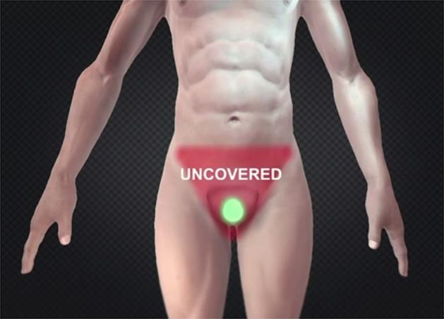 'Scroguard'-condoom bedekt volledige schaamstreek (video)