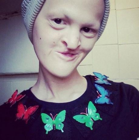 Melanie werd gepest om zeldzame ziekte, maar is nu model
