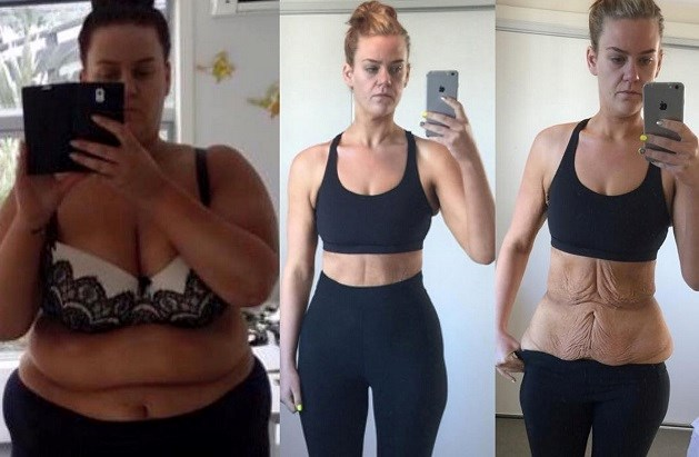 Zo ziet veel gewicht verliezen er echt uit