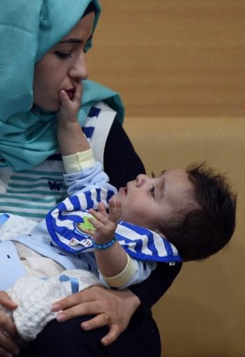 Baby met acht armen en benen succesvol geopereerd in India