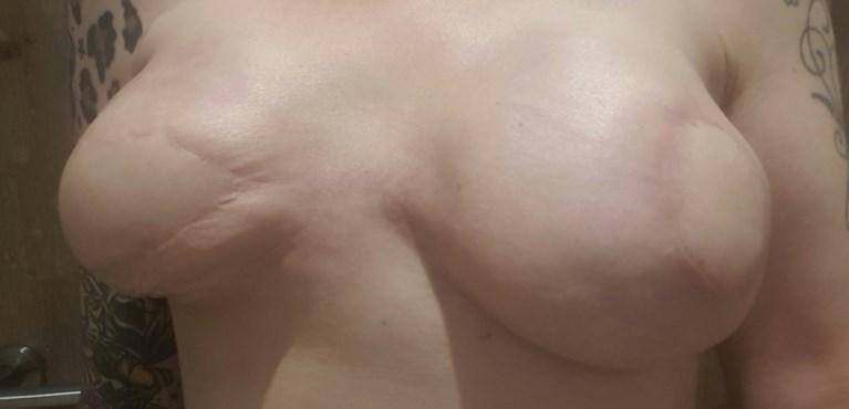 """COLUMN. """"Eindelijk weer borsten die op borsten lijken"""""""