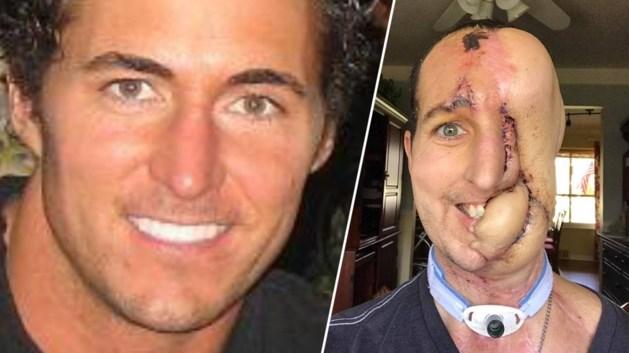Man (38) verloor helft van zijn gezicht door agressieve tumor, maar krijgt nu een tweede leven na reconstructie