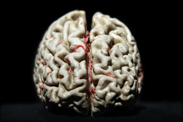 Vlaamse onderzoekers ontrafelen hoe de ziekte van Alzheimer ontstaat