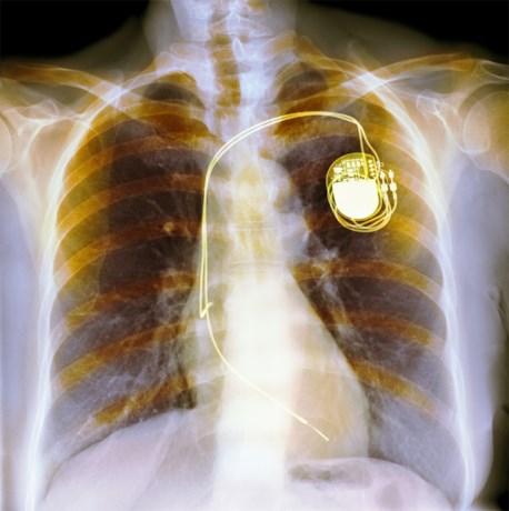 Duizenden pacemakers krijgen update tegen hackers