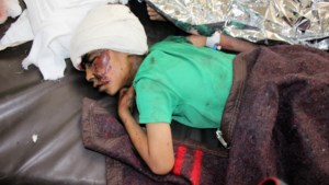 Luchtaanval Jemen doodt tientallen kinderen