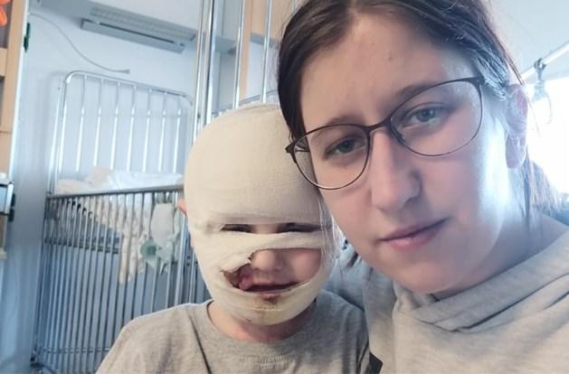 Zwaar verbrande Lander (3) mag week na ongeval ziekenhuis verlaten