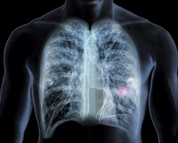 Goed nieuws voor een zeer moeilijk te behandelen type longkanker