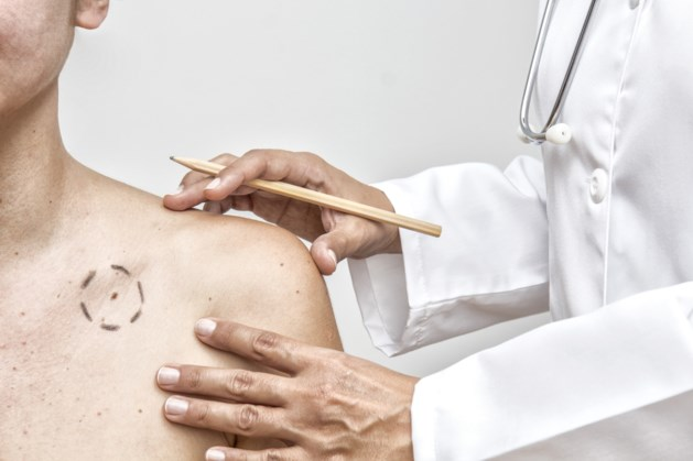 Huidkanker in België: stijging van 350% in 12 jaar