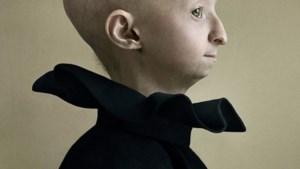 Progeria-patiënte Amber (13) voor de lens van Nederlandse topfotografe