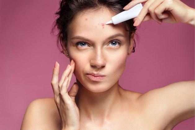 Trucjes tegen acne door de jaren heen