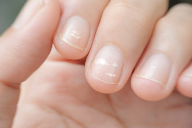 Dus daar komen die witte vlekjes op je nagels vandaan