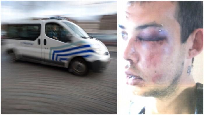 Lommelse agent voor de rechter nadat hij dertiger zes keer in gezicht slaat
