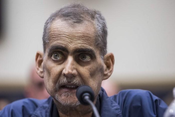 Luis Alvarez (53) zocht naar overlevenden na de aanslagen van 9/11, maar kreeg zo kanker