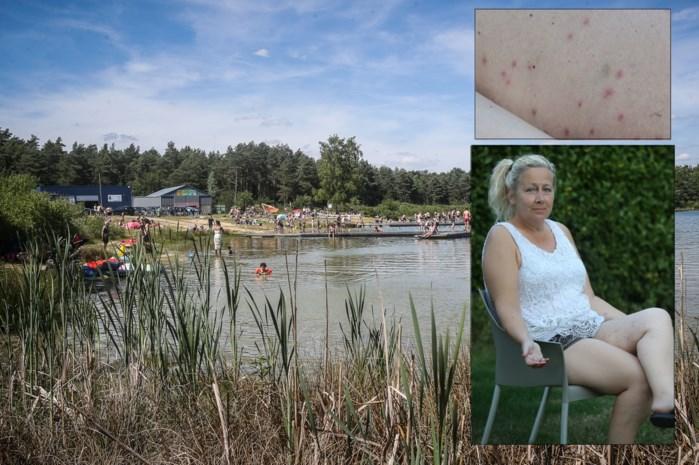 Zwemverbod in De Plas in Kelchterhoef nadat zwemmers klagen over jeuk