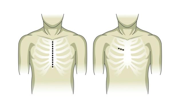 UZ Brussel maakt met sneetje van vijf centimeter openhartchirurgie overbodig