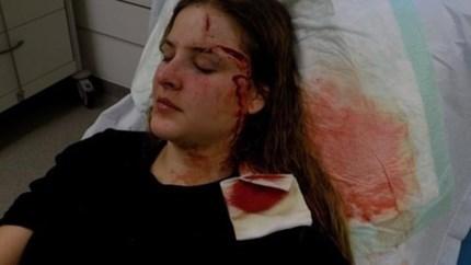 """Stans (27) werd met glas in haar gezicht gestoken in Hasselt: """"Leven is verwoest"""""""