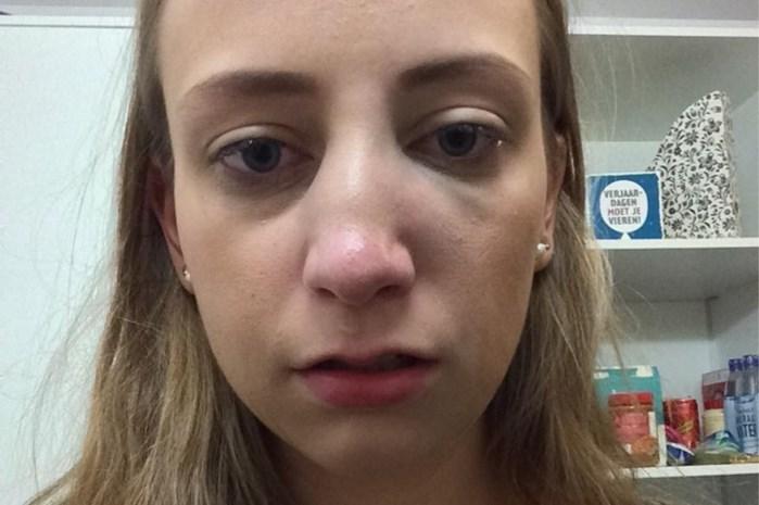 Meisje slaat Peltse studente gebroken neus tijdens nachtje uit in Leuven