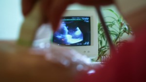 Meerderheid in de maak om termijn voor abortus op te trekken naar 18 weken