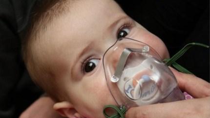 Luchtweginfectie RSVbij kleine kinderen in opmars
