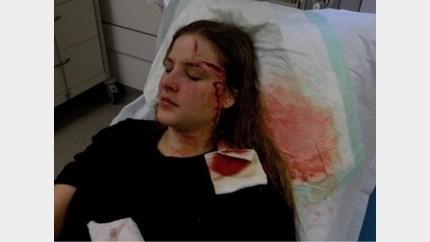 """Stans levenslang verminkt: """"Ondanks operaties blijven littekens te zichtbaar"""""""