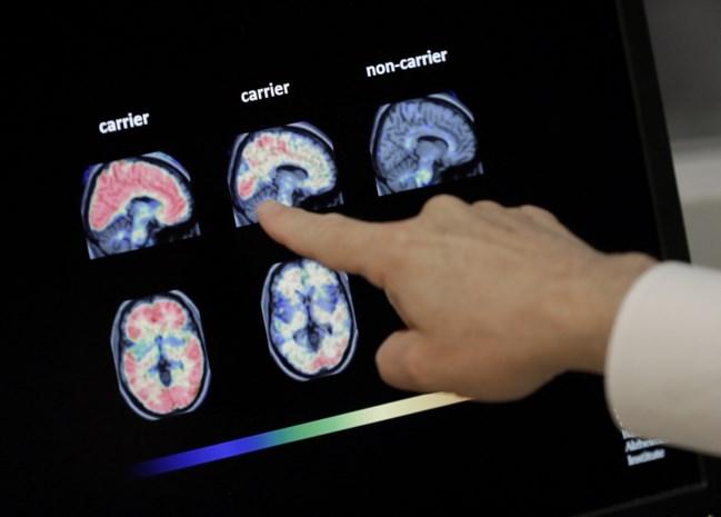 Chinees bedrijf wil middel tegen Alzheimer wereldwijd testen