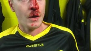 Doelman schopte Jochen (34) gebroken neus en hersenschudding