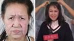 Meisje (15) werd gepest om haar ouder uiterlijk, maar ingrijpende operatie levert verbluffend resultaat op