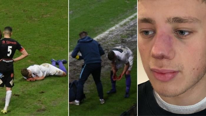 Patro-speler breekt neus na elleboogstoot: club eist dat match herspeeld wordt