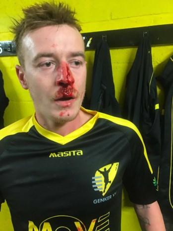 Werkstraf voor keeper (24) die tegenspeler gebroken neus slaat na rode kaart