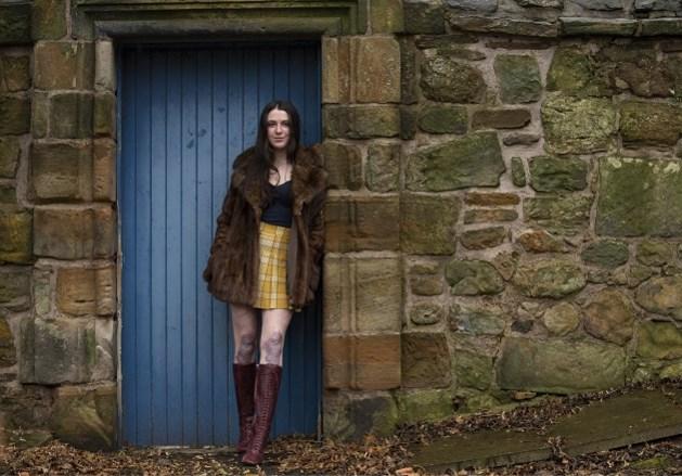 Vrouw met bijzondere huidaandoening poseert voor Vogue
