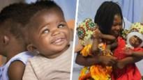 Siamese tweeling met succes gescheiden na achttien uur durende operatie