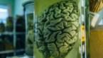"""Covid-19 kan permanente hersenschade veroorzaken: """"Ook bij milde symptomen"""""""