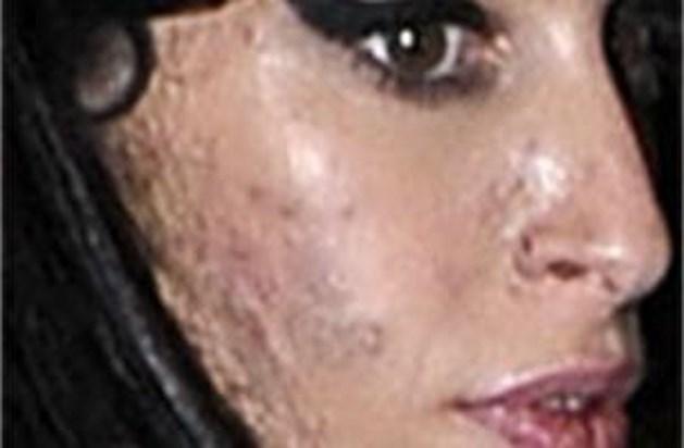 Drugs en drank laten sporen na op gezicht Amy Winehouse