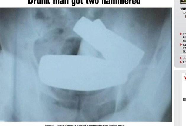Dronken man wil constipatie verhelpen met twee hamers in aars