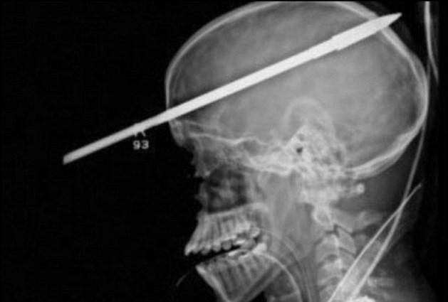 16-jarige overleeft harpoen in het hoofd (video)