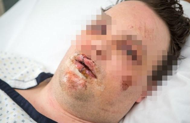 Zwaar toegetakelde Dimitri (33) hoopt op zware straf voor daders
