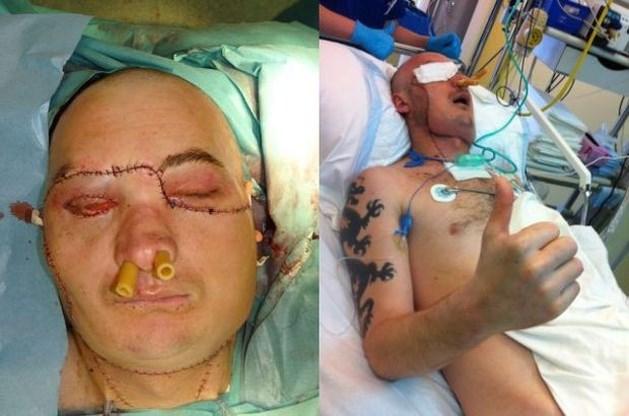 Pool (33) ondergaat gezichtstransplantatie na zwaar ongeval
